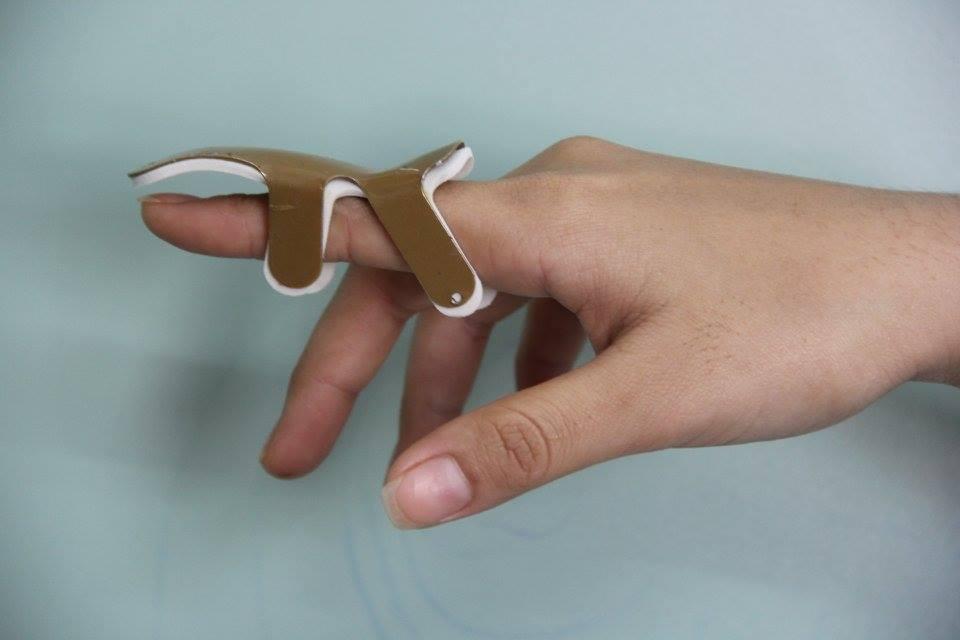 Nẹp ngón tay (F Size).